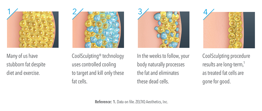 CoolSculpting Fat Cell Diagram