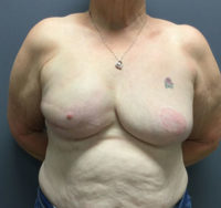 Breast Reconstruction Revision